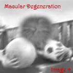 Macular degeneration view of two kids