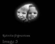 retinitis-pigmentosa view of two kids
